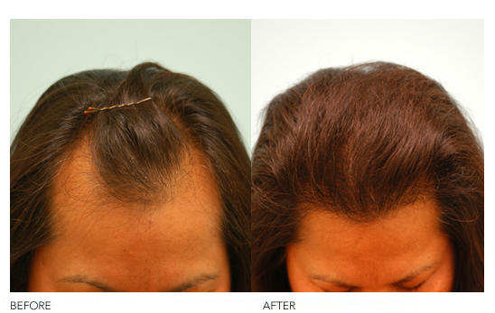 Female Hairline Lowering