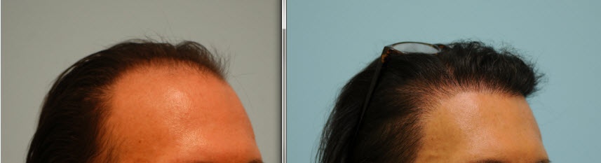 transgender hair transplant - right view